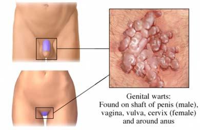 apariția negi genitale în locuri intime