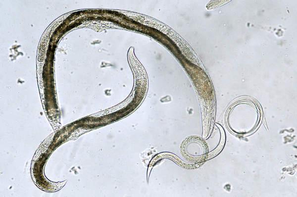 arată tipurile de viermi viermi și tratamentul lor cu medicamente