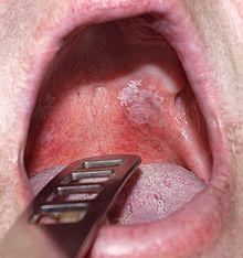 Dermatoza – tipuri, simptome, tratament. Dermatoze precanceroase