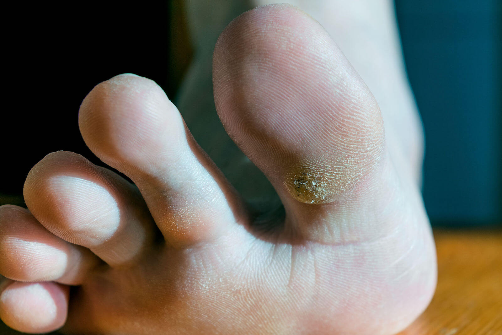 Dornwarzen am Fuß entfernen | Feet care, Skin care tips, Warts, Hpv feigwarzen entfernen