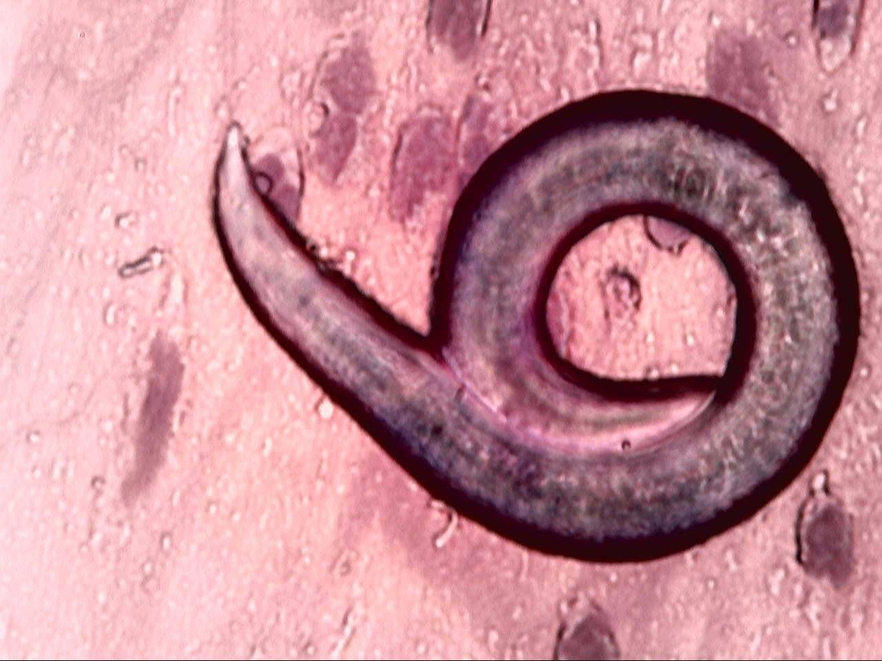 vierme cilindric parazit