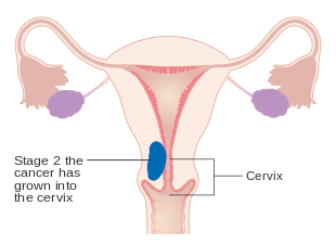 endometrial cancer of the lungs