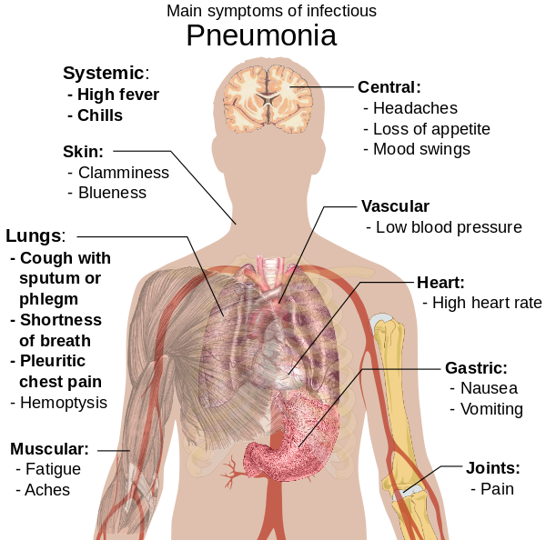 simptome infecțioase ale nematodei medicament non toxic pentru paraziți