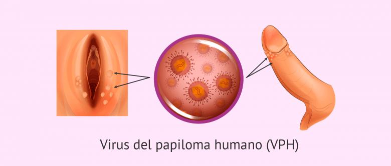 HPV genotipare in saliva   Synevo Moldova