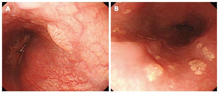 esophageal squamous papillomas