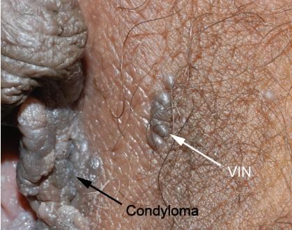 Papilloma labia majora, Semne și simptome