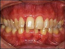 Gingival papilloma treatment, Gingival papillomas