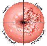 Negi Genitali - Simptome, Cauze, Diagnostic, Tratament + Poze - coboramlaprima.ro