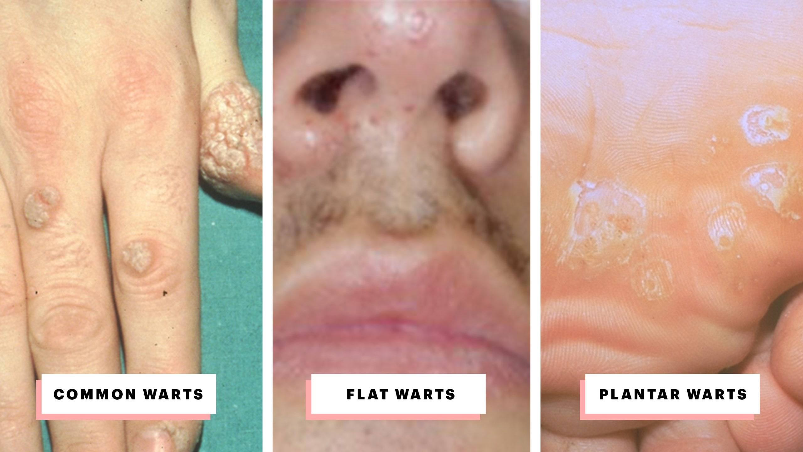 wart treatment black dots