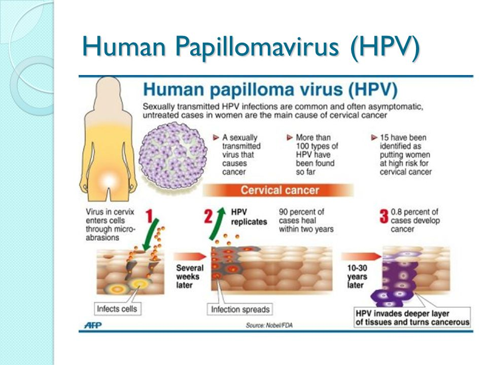 How many hpv cause cancer, Hpv on skin warts