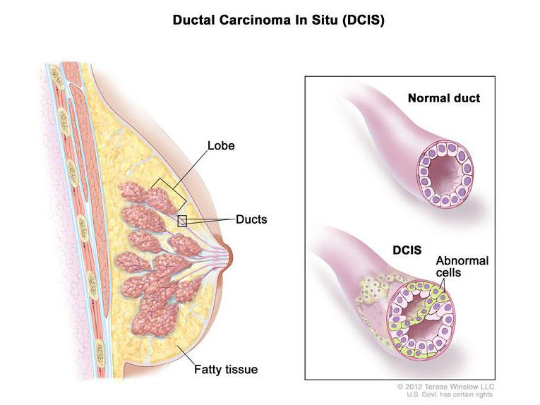 can ductal papilloma lead to cancer hpv impfung hersteller