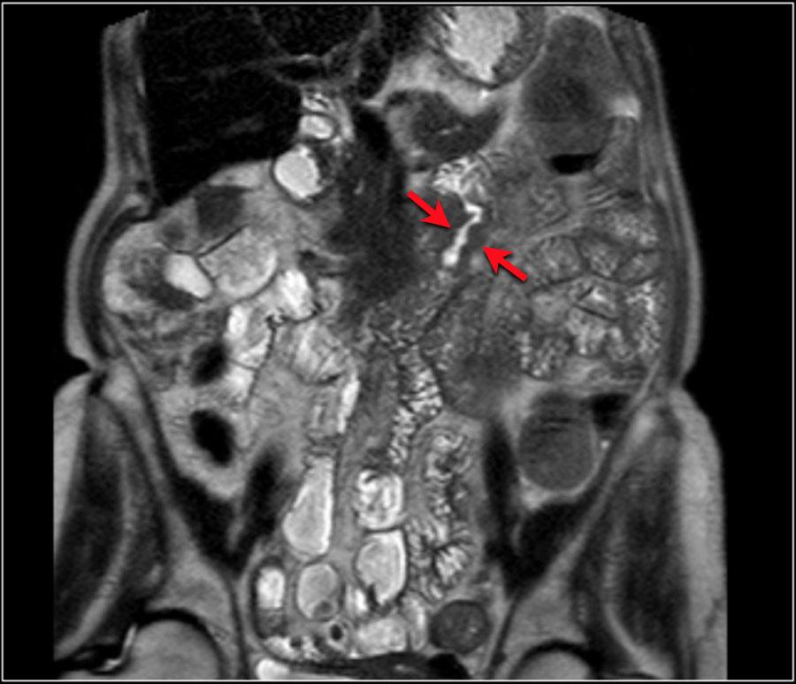 cancerul de plamani se transmite