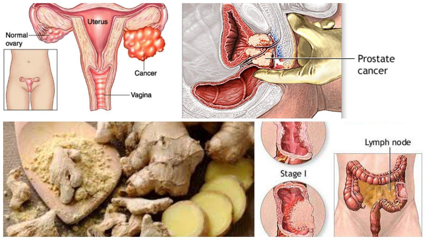 Cancer colon y ovario, Cum e să fii diagnosticat cu cancer la 19 ani, în România