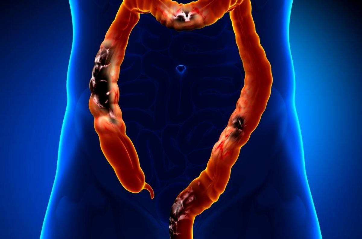 Cancer cervical uterino - Traducere