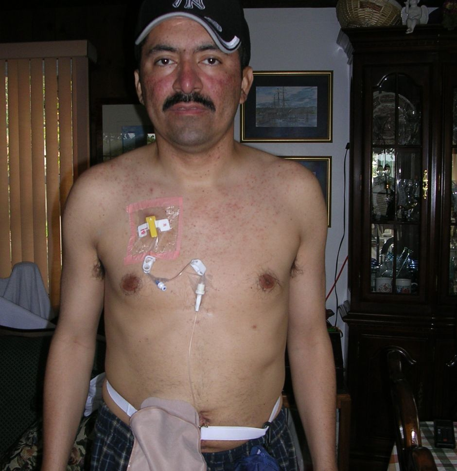cancer de colon avanzado sintomas