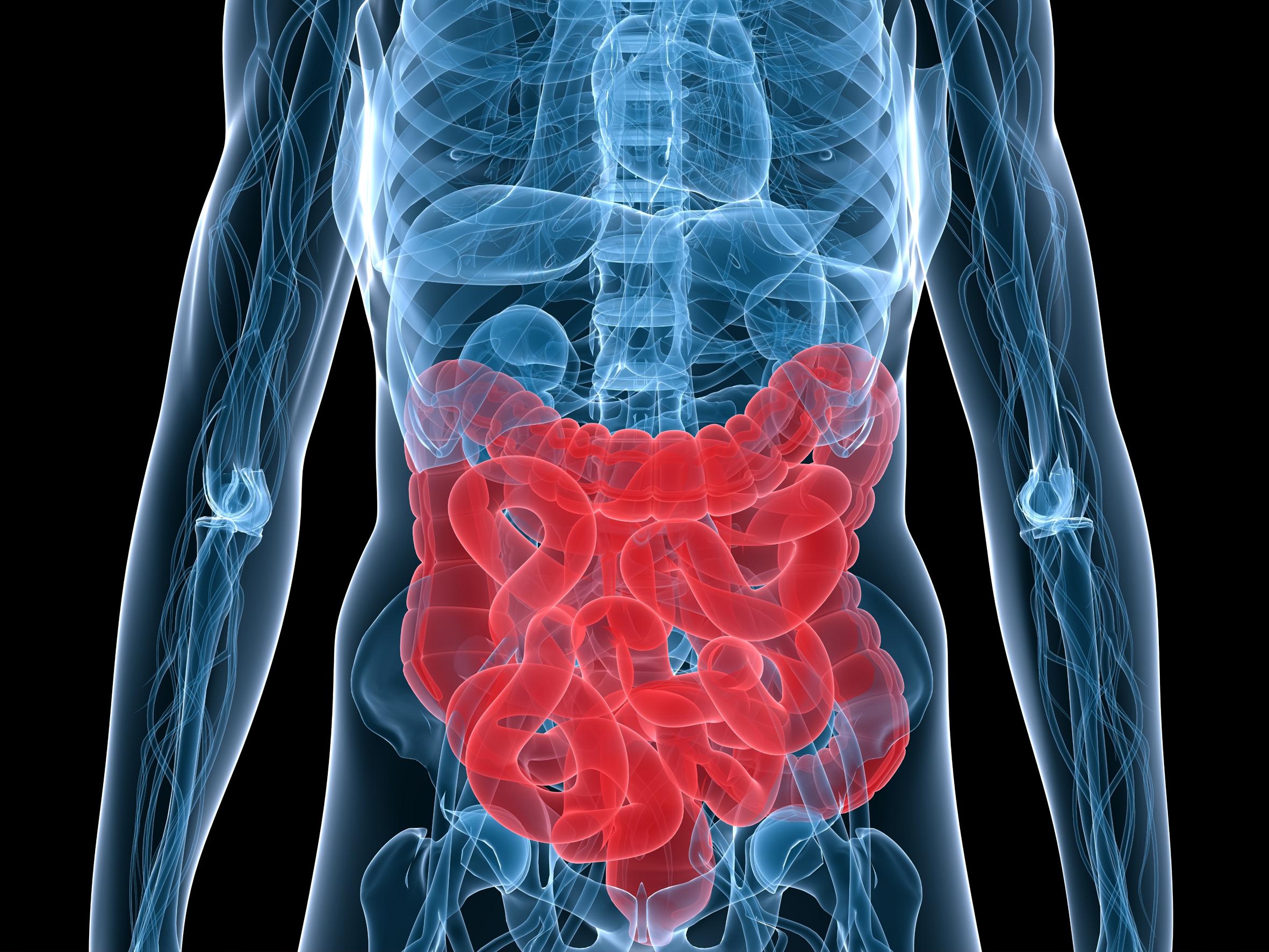 Cancer de colon hereditario no poliposico