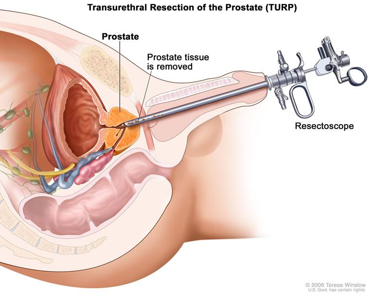cancer de la prostata avanzado