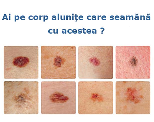 Cancerul de piele – câteva lucruri de știut de către pacienți   coboramlaprima.ro