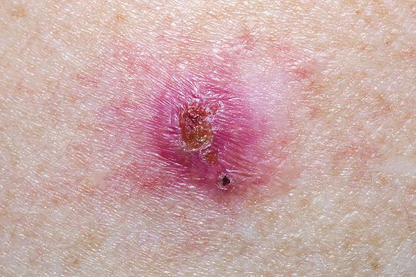 cancer de piele frecventa