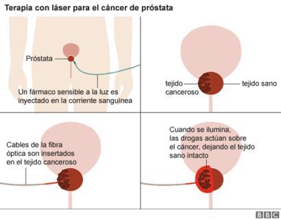 carcinoma - Traducere în română - exemple în italiană | Reverso Context
