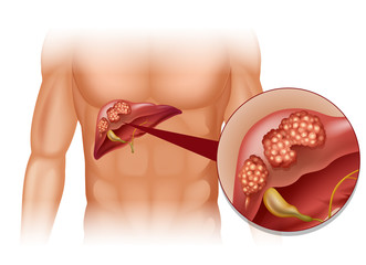 Cancerul hepatic. Cancer la ficat. Hepatocarcinom. Hepatom | Oncologie | Ghid de boli