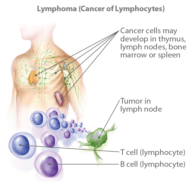 Cancer hodgkins lymphoma symptoms.