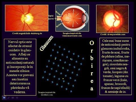 cancer la ochi cauze