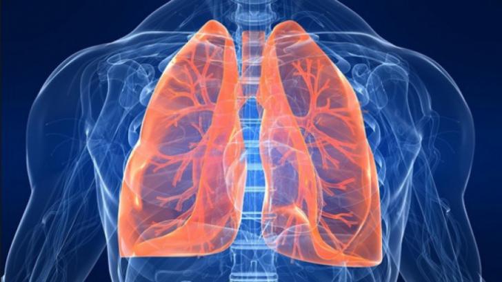 Cancerul pulmonar - coboramlaprima.ro