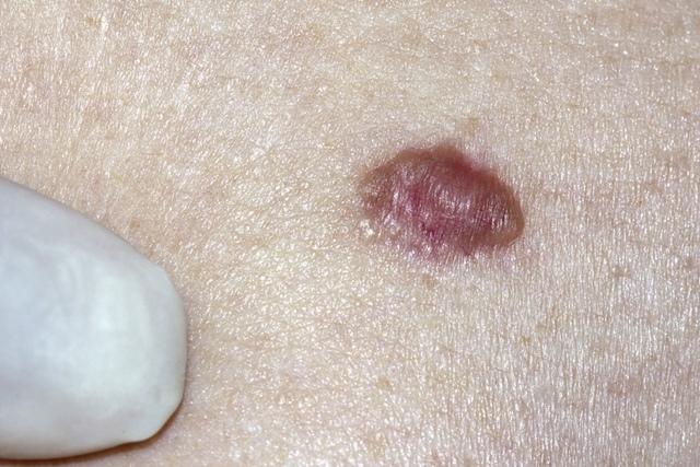 cancerul de piele recidiveaza total detox curăță suplimentul dietetic