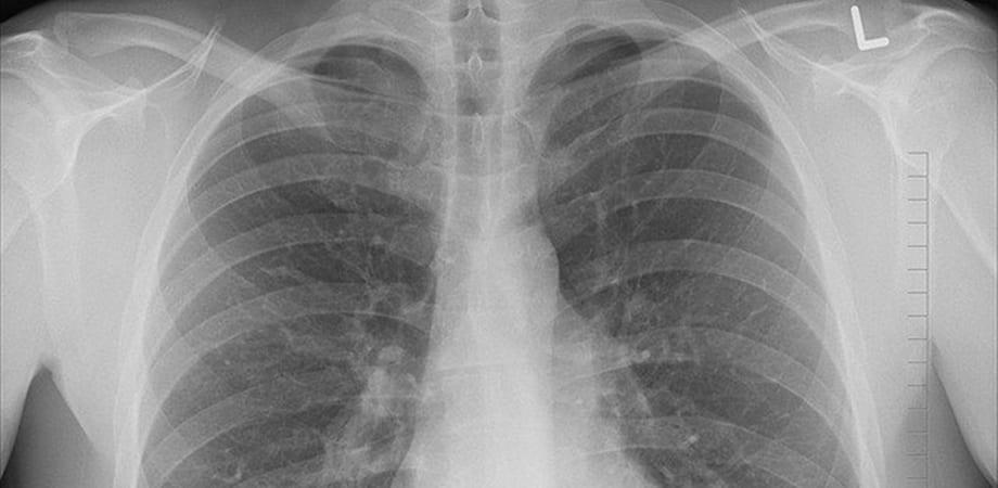Este cancerul contagios? Cele mai frecvente mituri despre cancer
