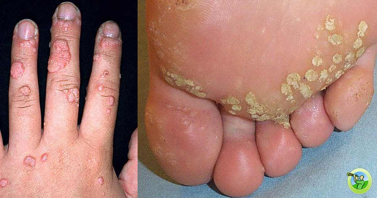 hpv virus from wart