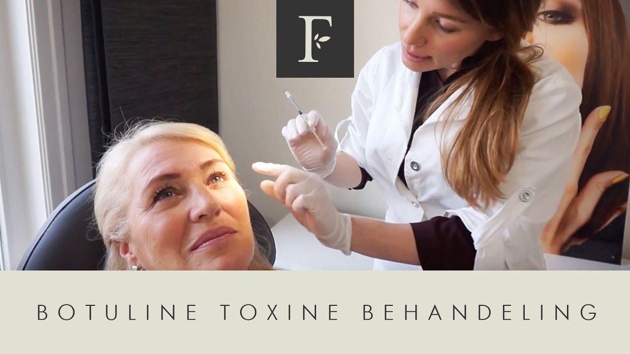 botuline toxine of botox este posibil să se rupă papiloamele