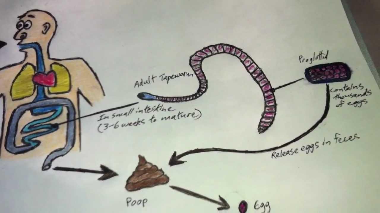 La prostata produce sperma, Cancer de uretra hombre sintomas, Cancer uretra hombre