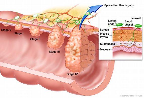 helminthiasis icd 10 comprimate cu capsulă parazită