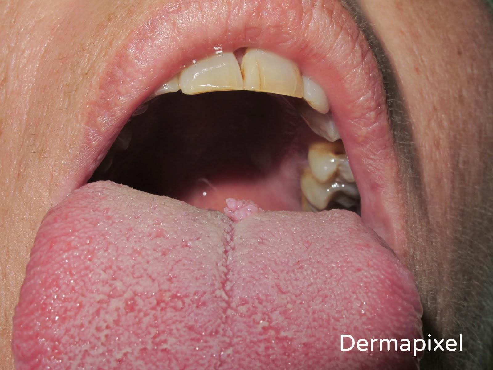 como quitar papiloma de la boca human papillomavirus vaccine oropharyngeal cancer