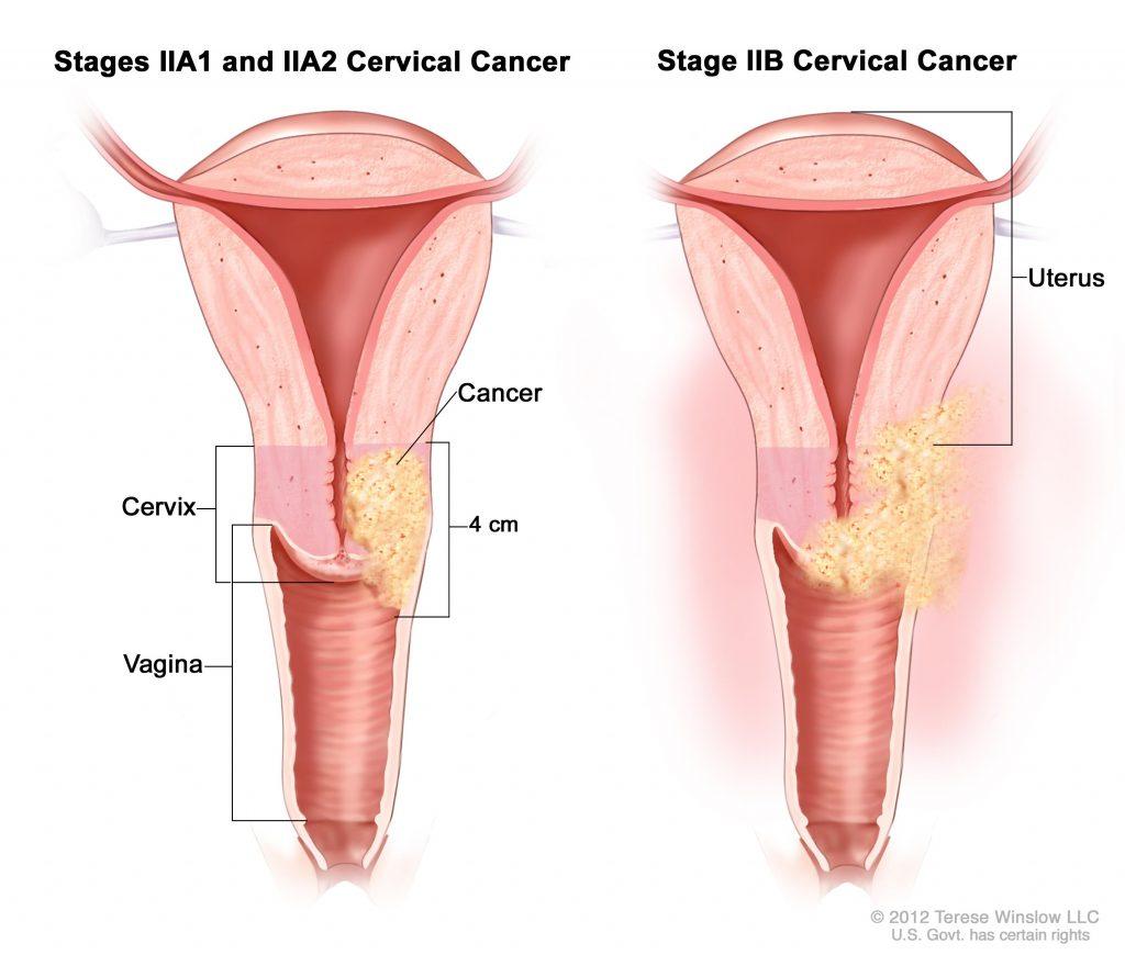 Condiloame vaginal