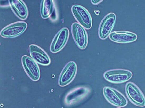 papilloma squamoso cervice condilom la femei simptome