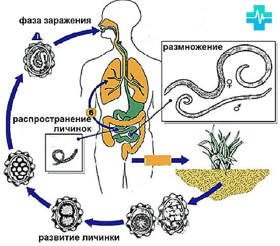 Simptomele diphildobothriasis - Diphildobothriasis dureri de spate