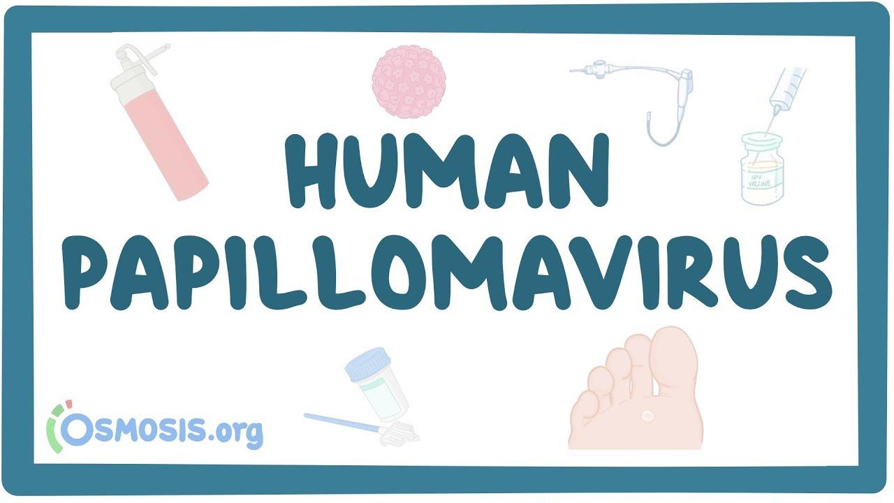 Cancer - Wikipedia, Hpv papillomavirus shqip Human papilloma virus shqip