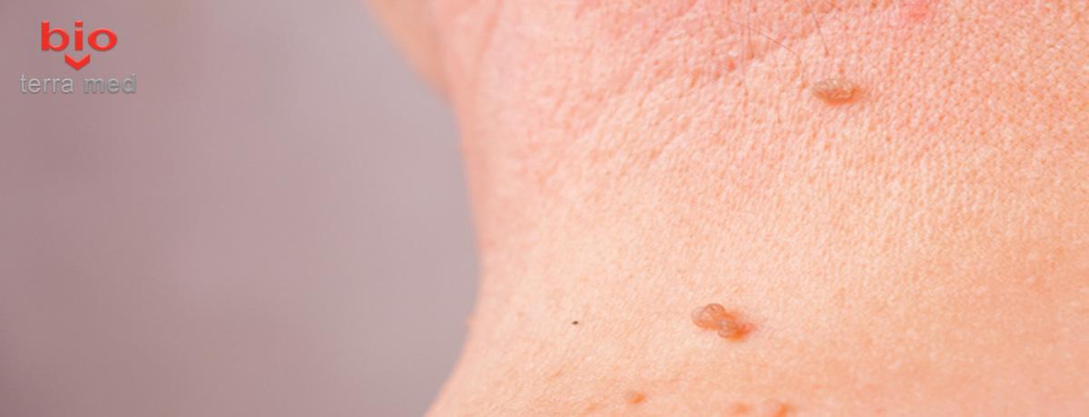 Ce sunt papiloamele, cât de periculoase sunt și cum pot fi îndepărtate
