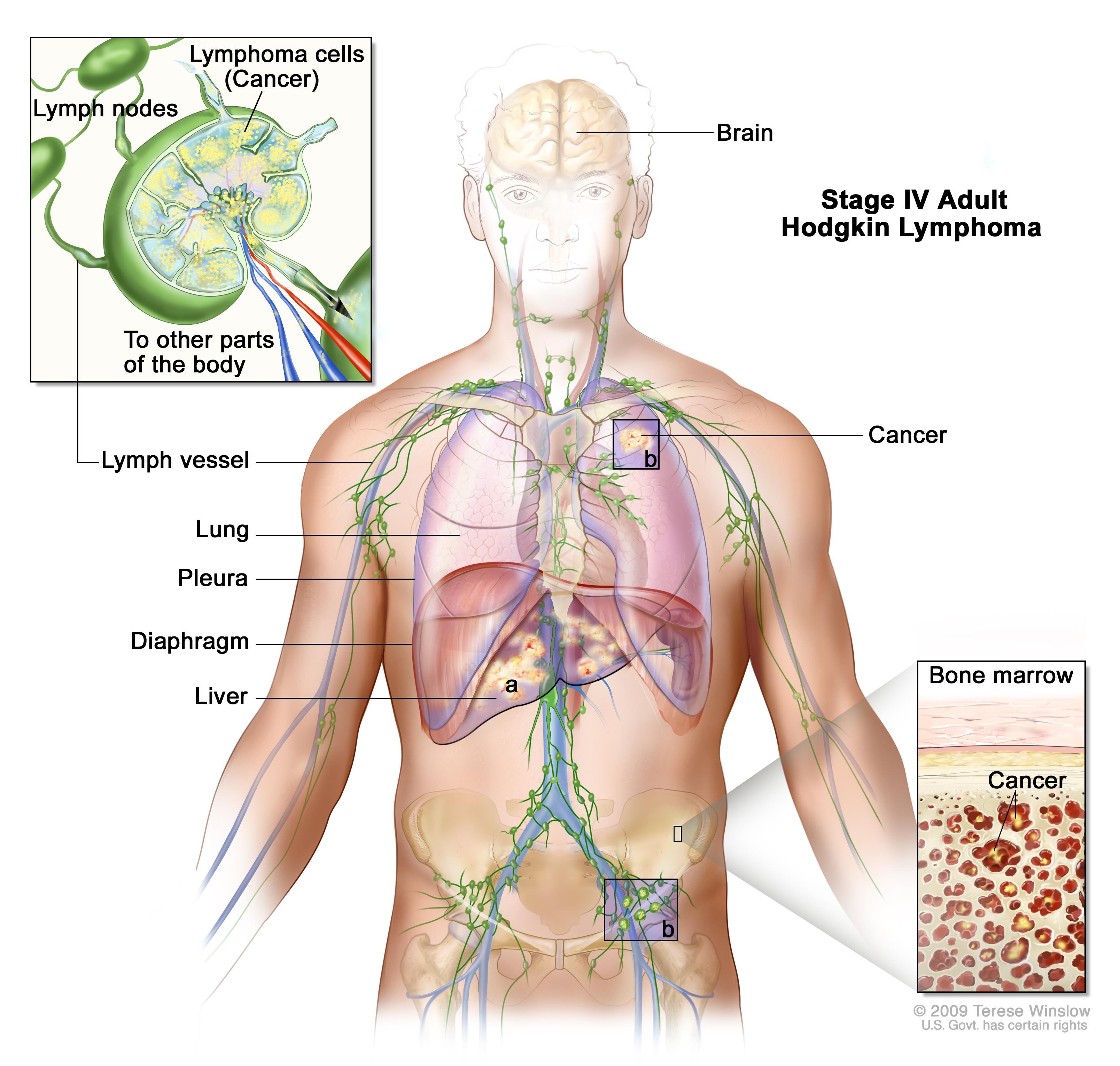 intraductal papilloma treatment guidelines ce comprimate să bea cu viermi rotunzi