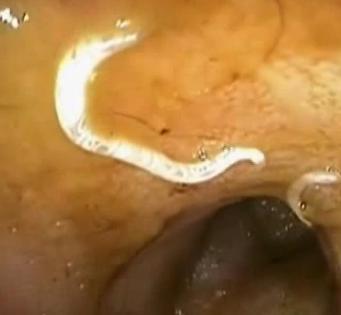 crijevni paraziti kod macaka condilom mare la un bărbat