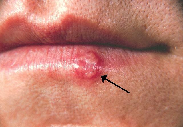 wart treatment morrisons papilloma virus piscina