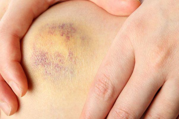 Semnele si simptomele cancerului mamar