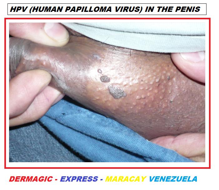 condiloame și papule hepatic cancer pet