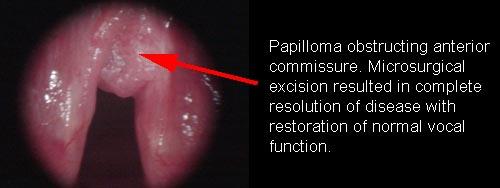 History of laryngeal papilloma icd 10