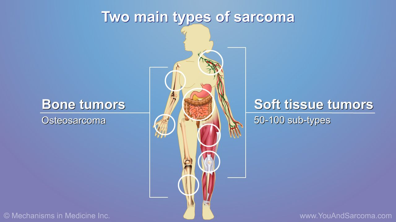 sarcoma cancer soft tissue cum arată condilomul larg