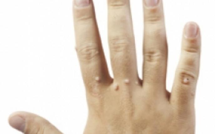 Verucile (negii): ce sunt, tipuri, tratament