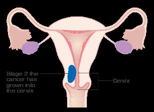 Endometrial cancer or adenomyosis. Endometrial cancer or adenomyosis