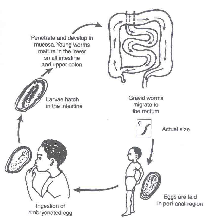 enterobius vermicularis anemia